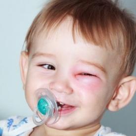 Ребенка укусил клещ, что делать?