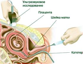 Амниоскопия при беременности.